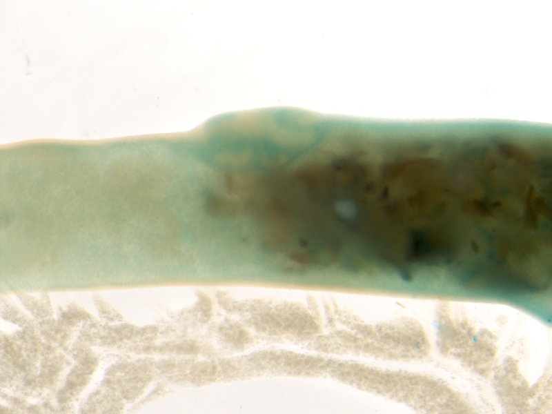Peyer's patch (Female / Heterozygous)