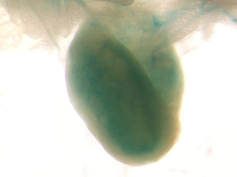 Bladder (Male / Heterozygous)
