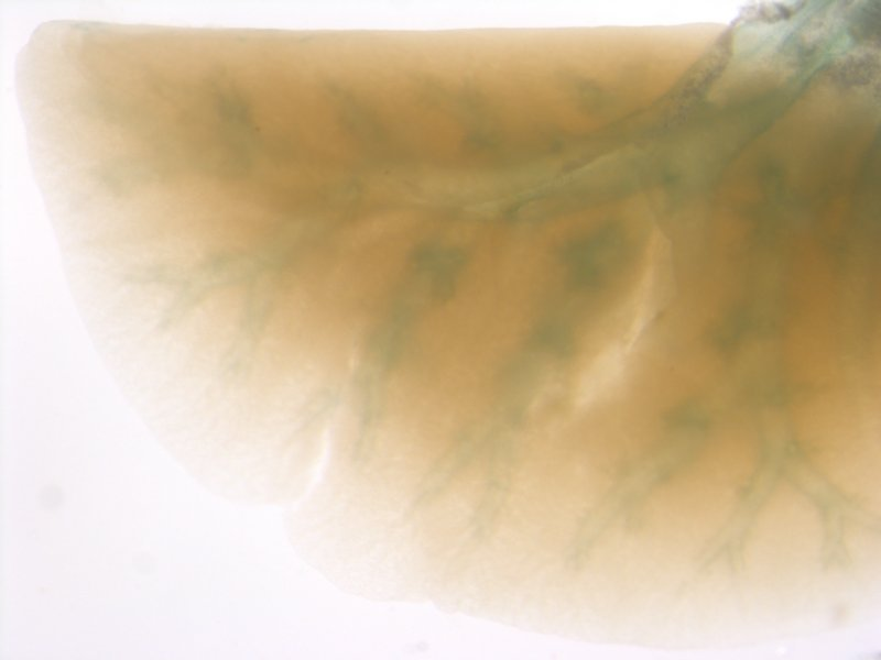 Lung (Female / Heterozygous)