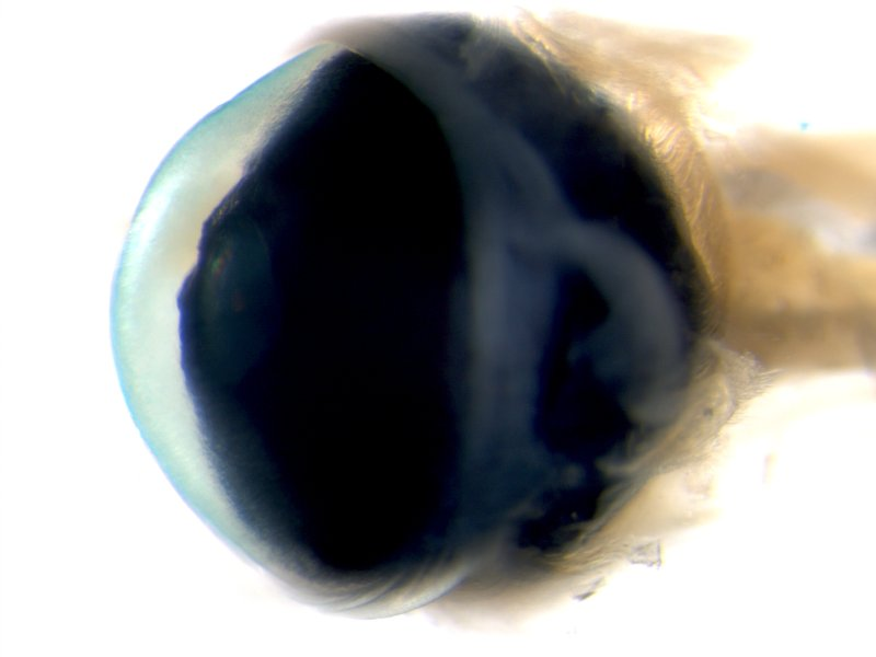 Eye (Male / Heterozygous)