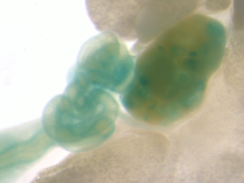 Ovary and Uterus (Female / Heterozygous)
