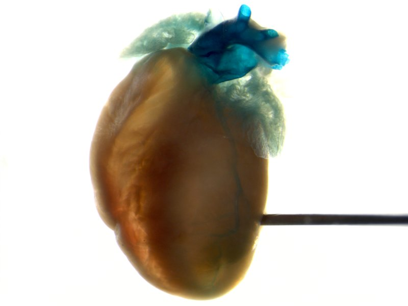 Heart (Female / Heterozygous)