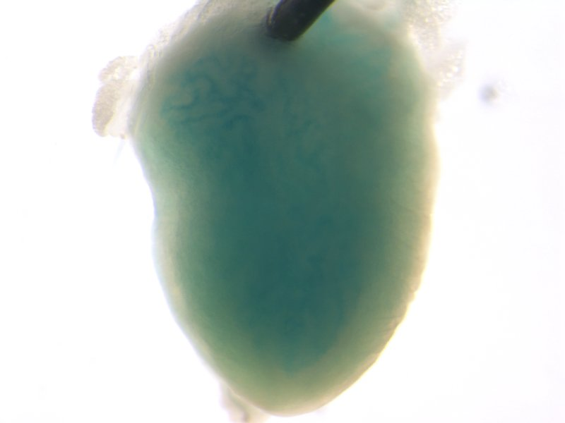 Bladder (Female / Heterozygous)