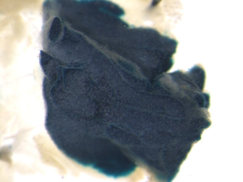 Brown fat pad (Male / Heterozygous)