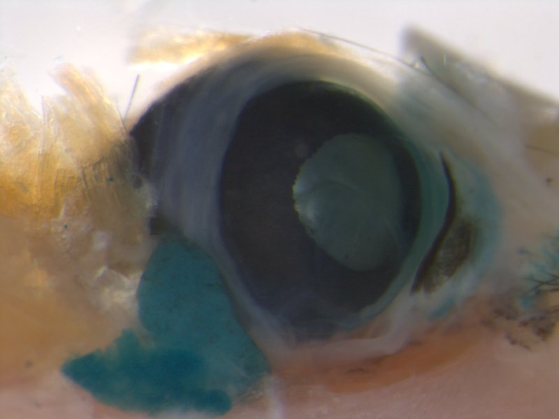 Eye (Female / Heterozygous)